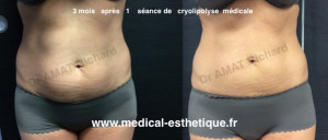 results cryolipolysis Dr AMAT