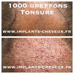 Greffe capillaire FUE 1000 greffons
