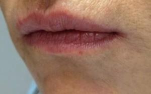 Lips dr AMAT.jpg-1