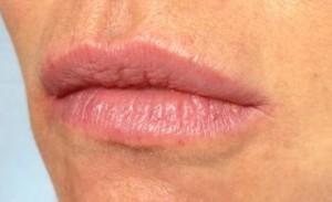 Lips dr AMAT.jpg
